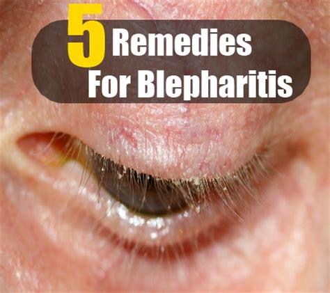 5 herbal remedies for blepharitis how to treat