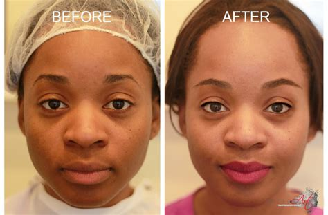 african american tattoo removal removal for american skin collection