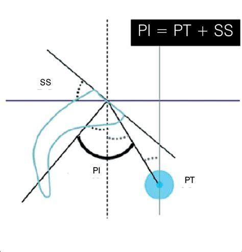 pelvic incidence corresponds   sum   values  pelvic tilt  scientific