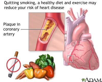 womens health diet and fitness medicine health advice hardening of the arteries medlineplus medical encyclopedia