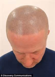 permanent head hair without surgery failed hair transplant left me disfigured man has head