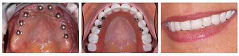 tipi di protesi dentarie mobili protesi dentarie mobili e fisse in resina ceramica o metallo