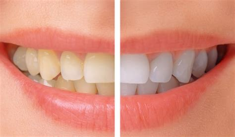 7 Reasons To Get Your Teeth Whitening Procedure Done By A Pro by Teeth Whitening Castlebawn Dental Practice Ltd