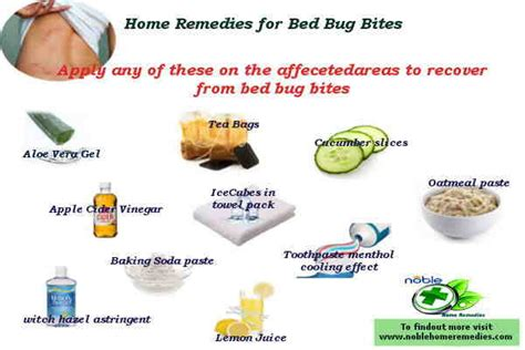 home remedies for bed bugs bites how to treat bed bug bites 12 steps with pictures wikihow