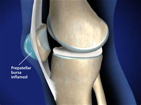 Kneecap Fracture Images