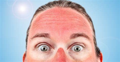 Home Repairing Solusi Mudah Atasi Kerusakan Rumah kulit terbakar sinar matahari atasi dengan 8 langkah ini