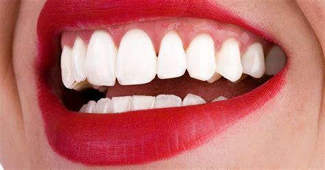 warning  illegal diy teeth whitening kits  dangerous