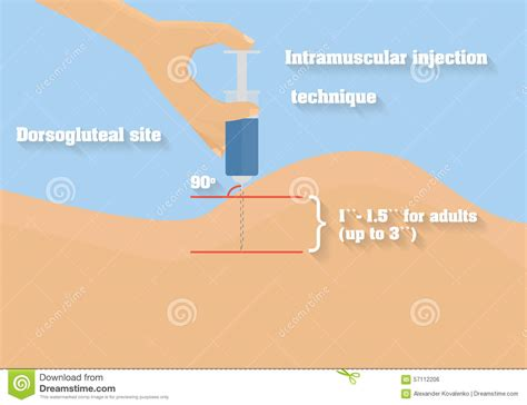 iniezioni sul sedere intramuscular injection technique vector illustration