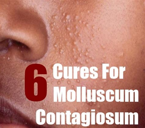 top 6 cures for molluscum contagiosum how to