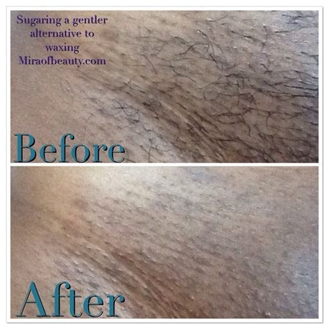 brazilian wax photos before after hair removal before and after sugaring hair removal yelp