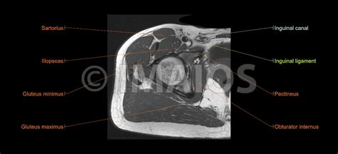 atlas of anatomy by sectional imaging lower extremity mri of anatomical atlas