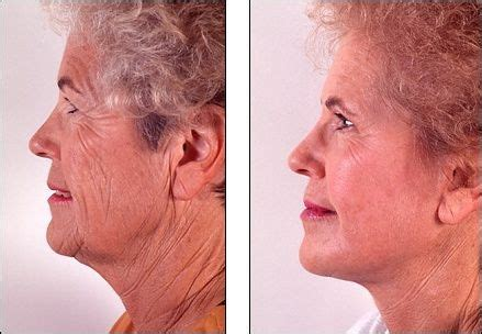 hair styles to reduce sagging neck look turkey neck syndrome sagging jowls and wilting cheeks