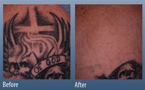 tattoo over laser removal removal line center ardmore pa