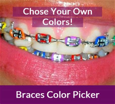 braces color picker why summertime may be the best time to get braces