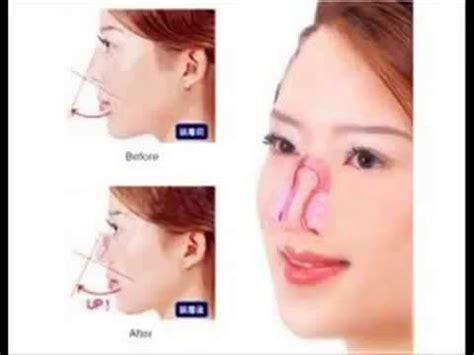 Nose Up Pemancung Hidung Alat Make Up Tools cara memancungkan hidung h 0852 5924 3729