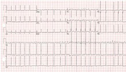 chronic atrial fibrillation images bmj  practice