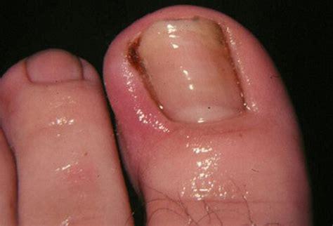several toenails look skin color under them diabetes n hypertension