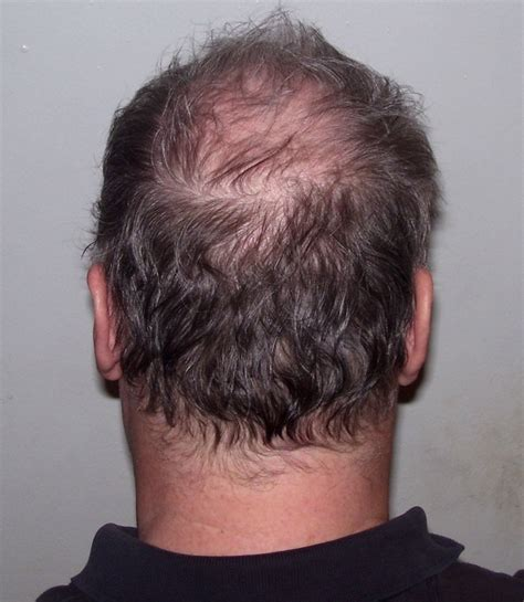pictures of the back of men heads file back of man s head plus 4 years and 3 months jpg