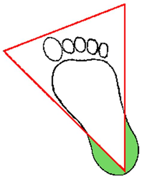 Drawing Blood From Infants Heel