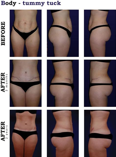when can you have a tummy tuck after c section 31 best images about cosmetic surgery on pinterest