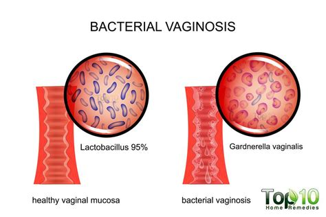 home remedies for bacterial vaginosis top 10 home remedies