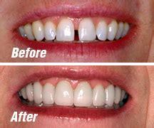 general dentistry before after pictures dentist boulder co