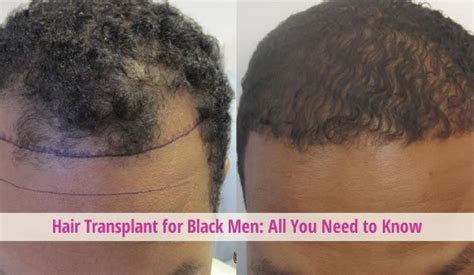 hairline restoration for black men hair transplant for black men