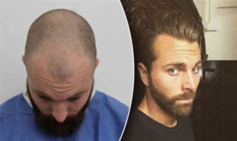 new hair transplant hair transplant gives barber who lost hair in his early