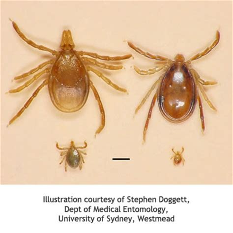 tick allergy australasian society of clinical immunology