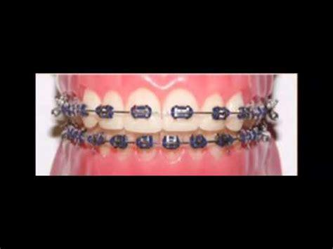 cool colors for braces braces cool colors ideas 2