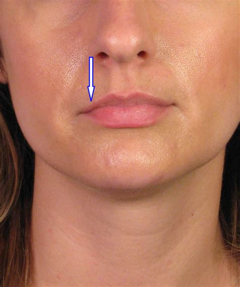 Augmentation Fill by Lip Enhancement Augmentation With Juvederm