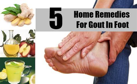 5 home remedies for gout in foot treatments