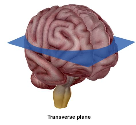 transverse section of the brain coronal plane brain images