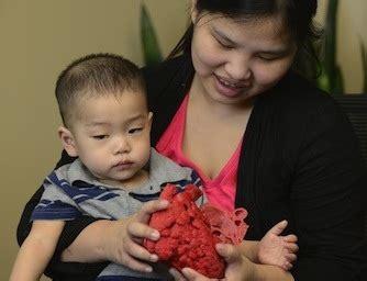 alimentazione bimbo 14 mesi un cuore stato in 3d salva la vita di un bimbo di 14