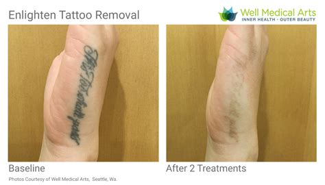 seattle tattoo removal removal in seattle using pico technology at well