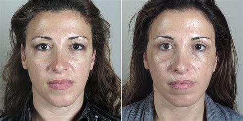 Is A Mini Lift A Facelift Alternative by Facelift New Jersey Center For Plastic Surgery