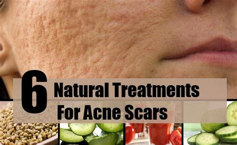 6 effective treatments for acne scars best home