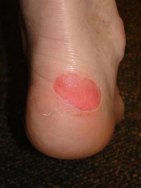 blisters on my heels from new shoes calluses on of