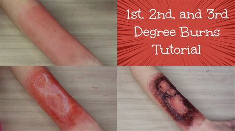 1st Ans Second Mba by 1st 2nd And 3rd Degree Burns Tutorial