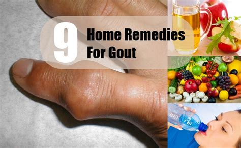 9 home remedies for gout treatments cure for
