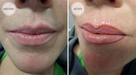 lip tattoo removal permanent makeup removal the of