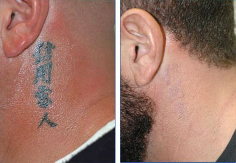 laser tattoo removal scars fashion