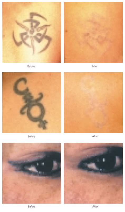 omaha tattoo removal 100 laser removal how many laser