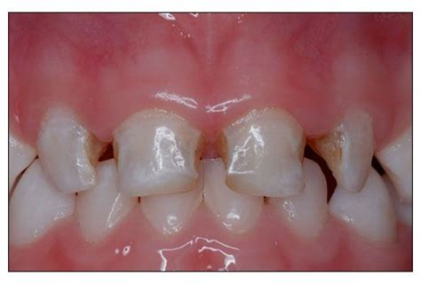 pathogen linked  severe early childhood tooth decay