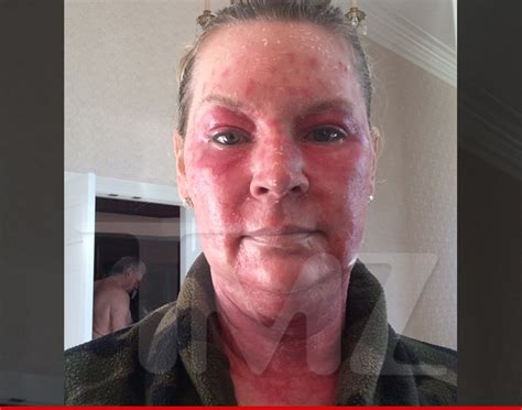 'Queen of Versailles' Jackie Siegel    Lasers Scorched My