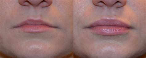 fuller lips with dermal filler injections in nj ethos spa