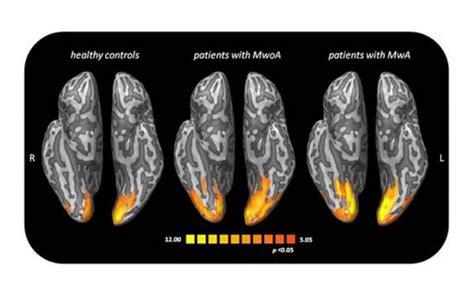 aura mal di testa emicrania con aura fotografata l impronta nel cervello
