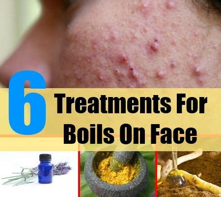 6 treatments for boils on treatments