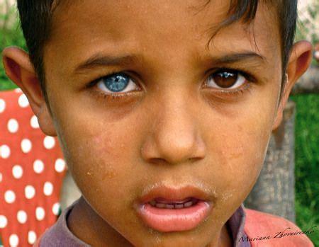two colored heterochromia iridum amazing 2 different eye color