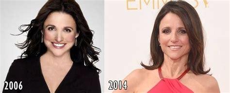 louis licari plastic surgery louis lacari before and after plastic surgery louis lacari